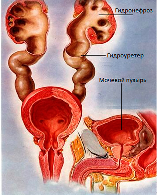 Consequences and complications of hydronephrosis