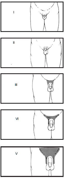 Gonoartroza articulațiilor 3_ 4 grade