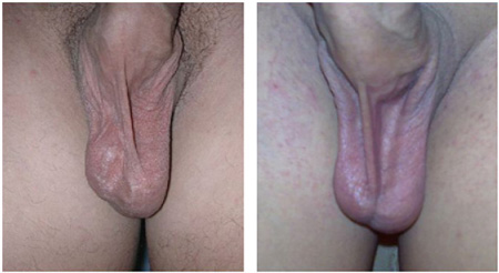 Dilation of scrotal veins before and after surgery